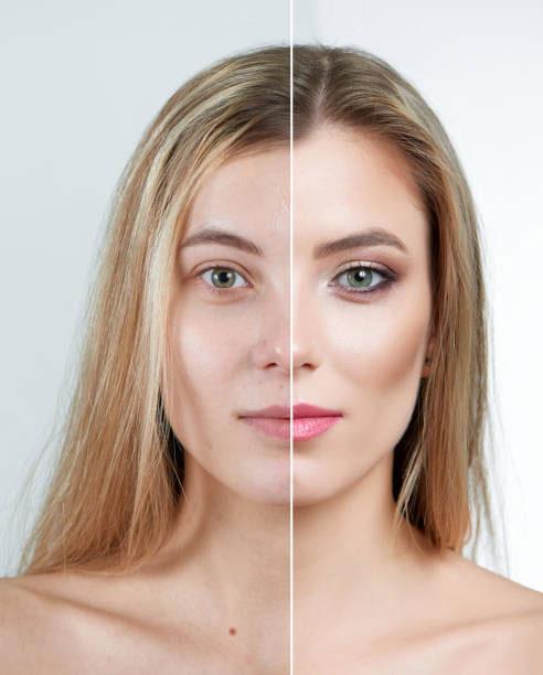 Augmentacija jagodica i obraza