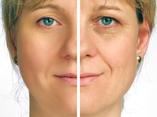 Tear trough filler – MATICLINIC Aesthetics ǀ Botox