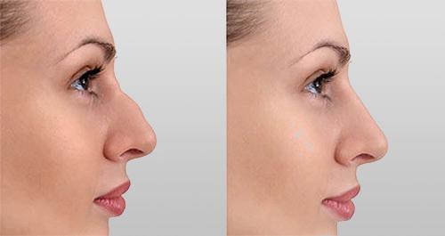 Nekirurška korekcija nosa