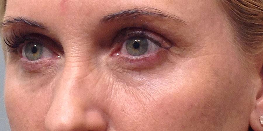 Bore oko očiju - Poslije