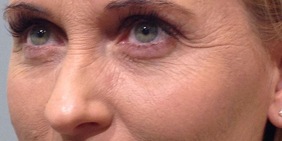Bore oko očiju - Prije