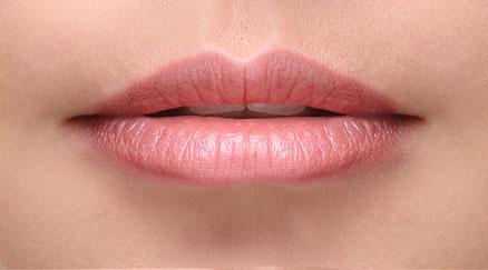 Povećanje usana - Prije