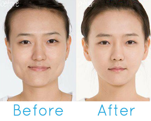 Wide/square jaw reduction