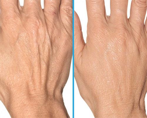 Pomlađivanje ruku