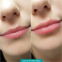 Lips by Dr Stipo Matic