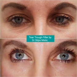 Tear trough Filler by Dr Stipo Matic