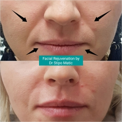 Facial Rejuvenation by Dr Stipo Matic